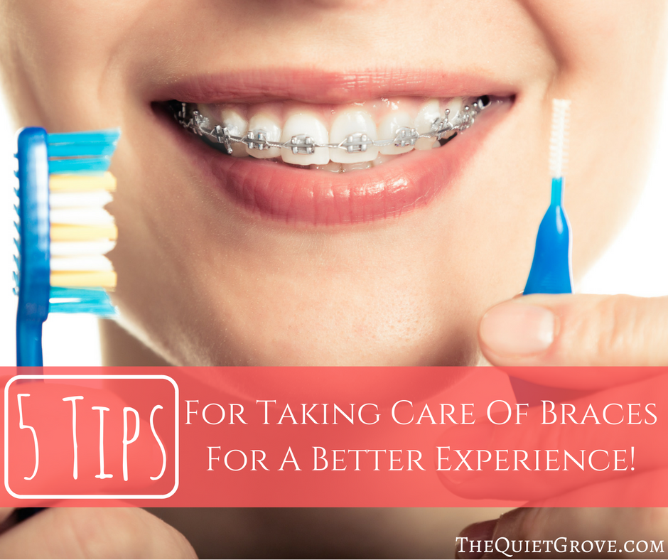 5 Tips For Taking Care Of Braces For A Better Experience